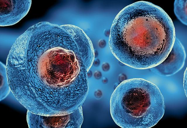 Kök hücre tedavisi hangi hastalıklara fayda sağlıyor?