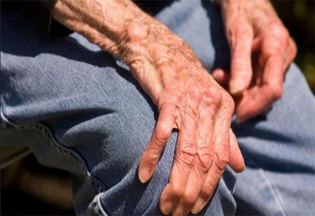 Kemiklerin osteoporozu. Ana nedeni kalsiyum eksikliği