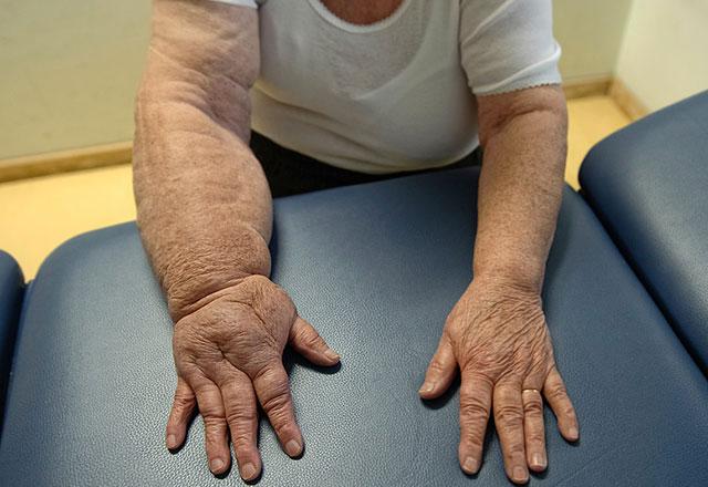 Fil Ayağı Hastalığı Görselleri Resmi, Tedavisi Çaresi