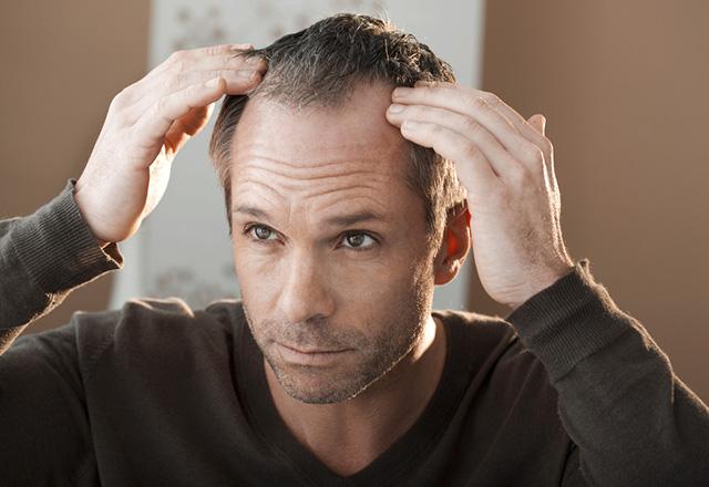 Saç dökülmesinin tedavisi mümkün mü?