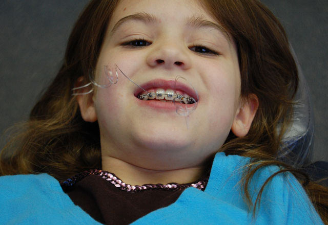 Ortodonti tedavisinde çocukların uyması gereken kurallar