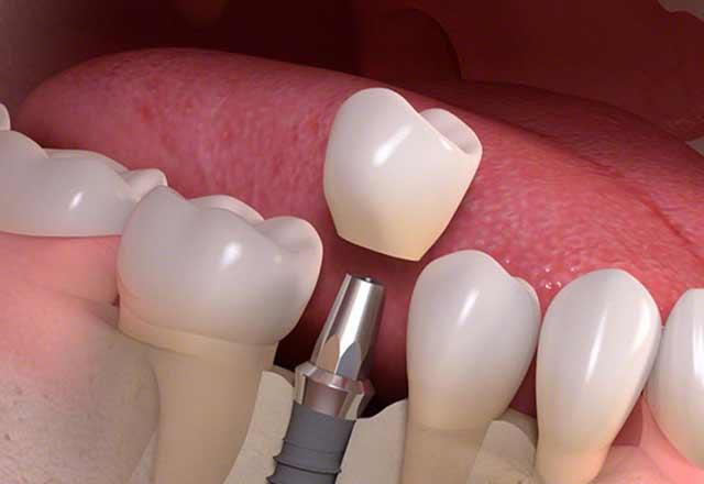 Hangi durumlarda implant yapılmalıdır?