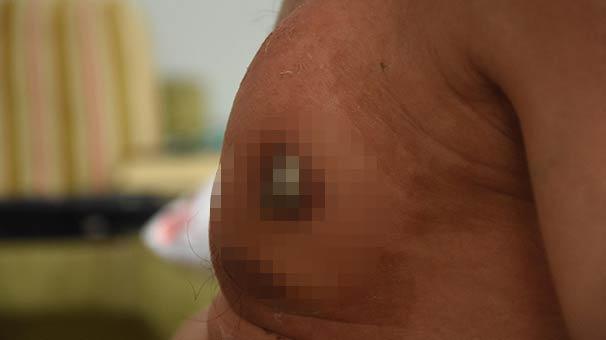 Ameliyatı beklerken göğsünden dışarıya fırladı!